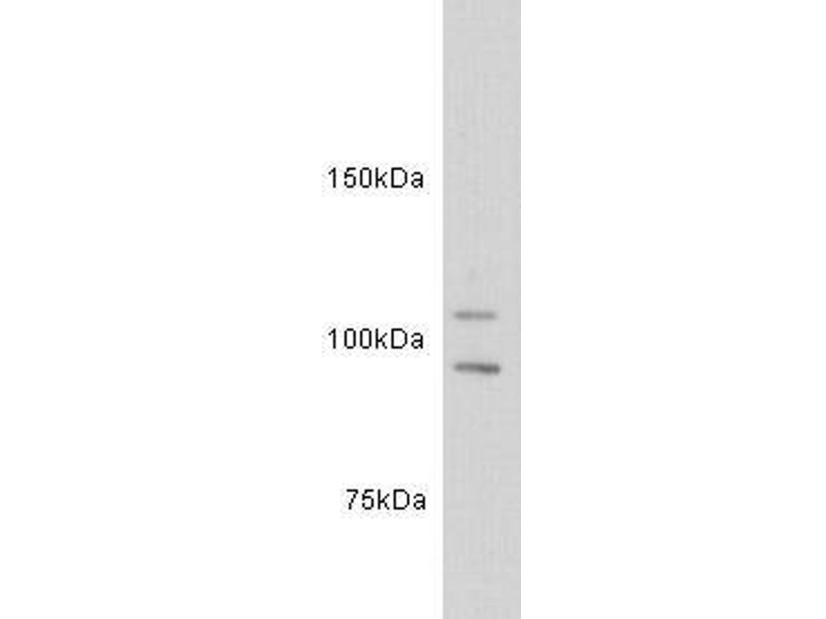 Western blot analysis on jurkat cell lysates using anti-c-kit polyclonal antibody