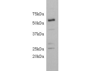 Western blot analysis of CD4 on mouse brain lysate using anti-CD4 antibody at 1/500 dilution.