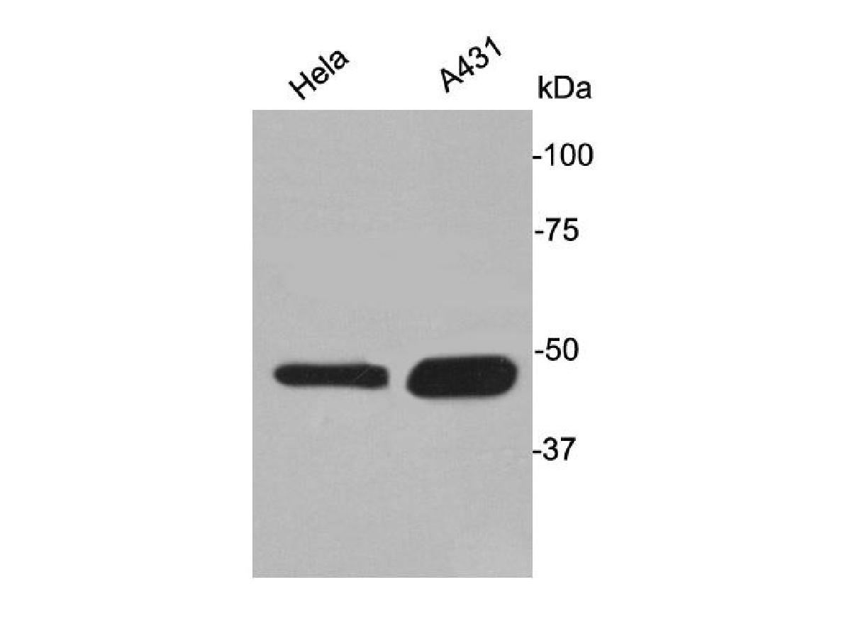 Western blot analysis of Cytokeratin 17 on different lysates. Proteins were transferred to a PVDF membrane and blocked with 5% BSA in PBS for 1 hour at room temperature. The primary antibody was used at a 1:500 dilution in 5% BSA at room temperature for 2 hours. Goat Anti-Rabbit IgG - HRP Secondary Antibody (HA1001) at 1:5,000 dilution was used for 1 hour at room temperature.