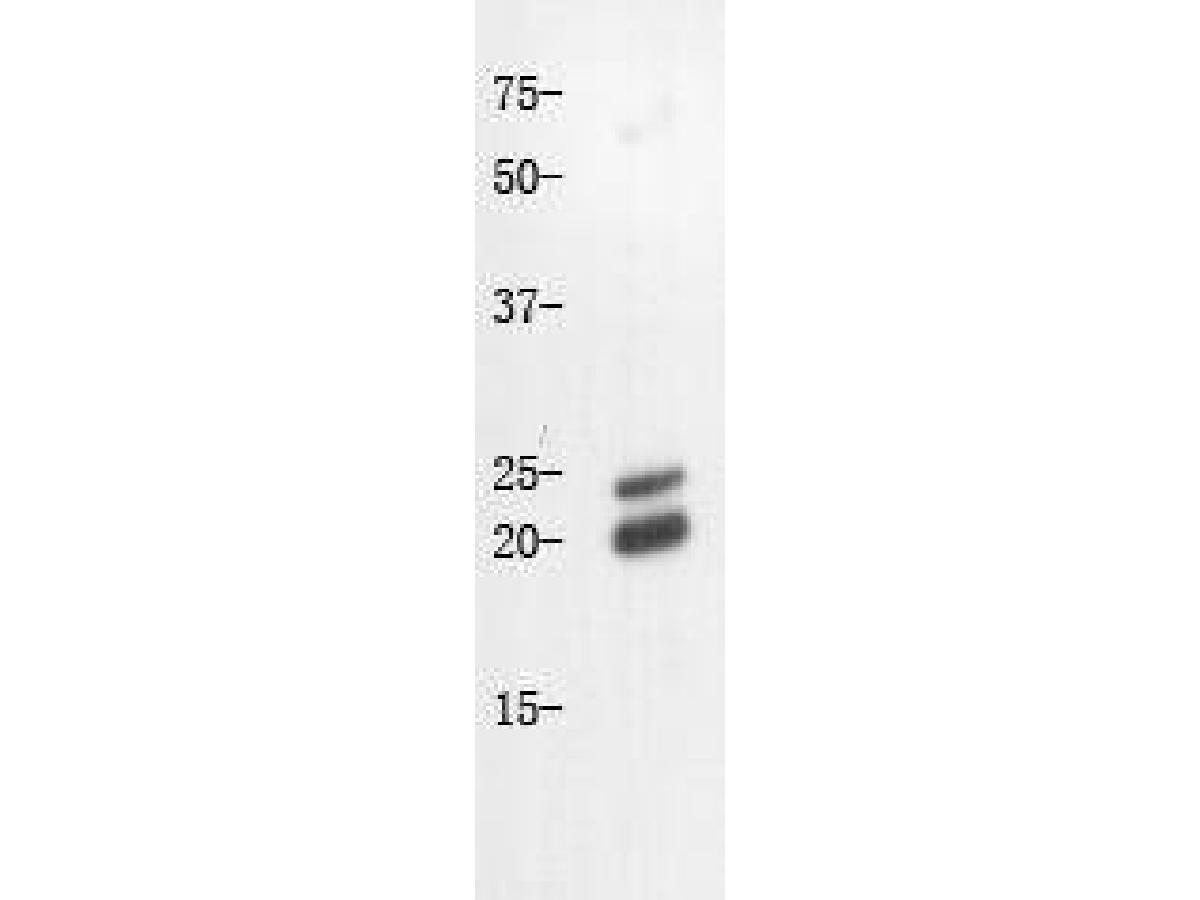 Western blot analysis on Mouse liver using anti-Caveolin-1 polyclonal antibody