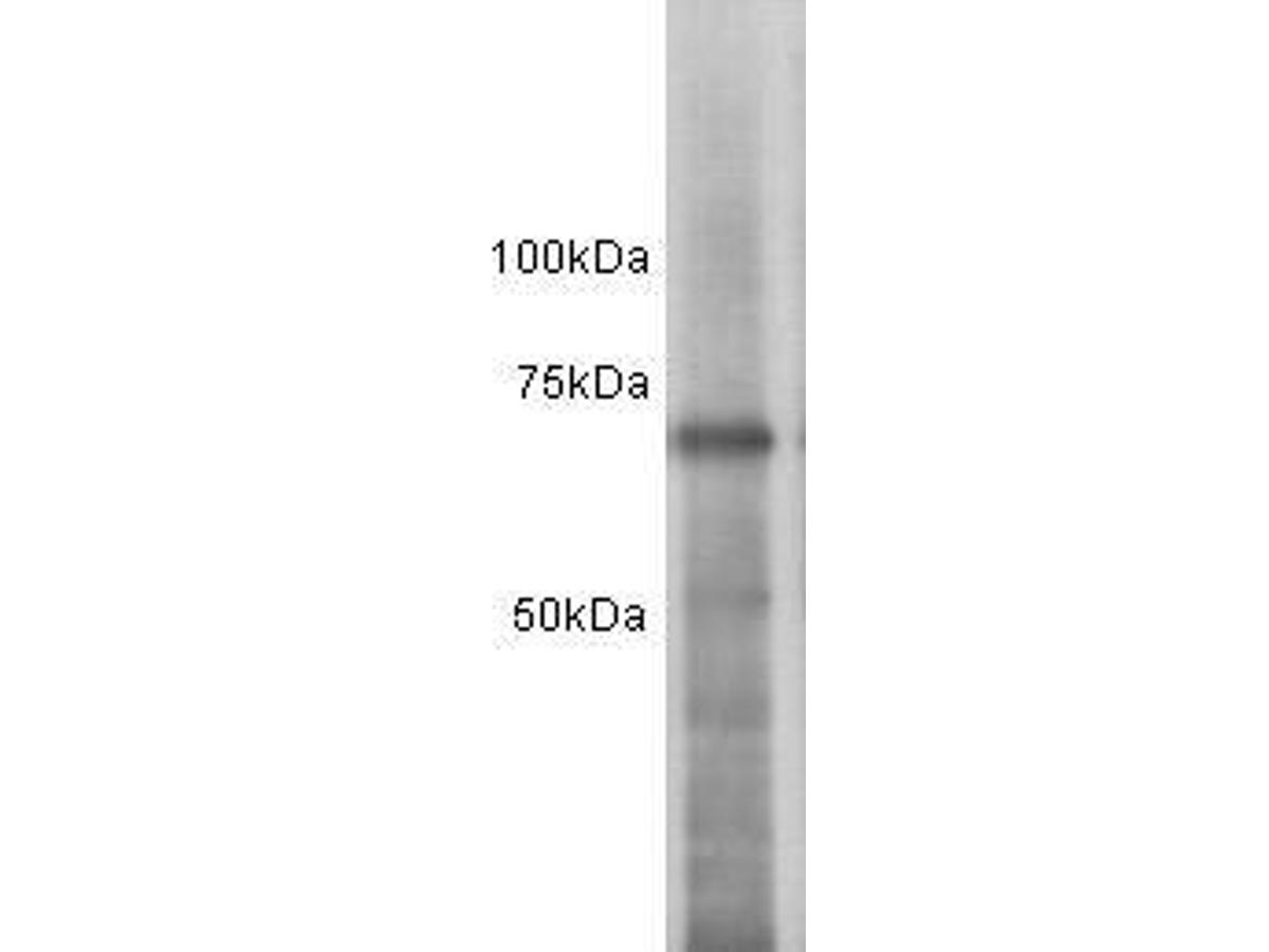 Western blot analysis on MCF-7 using anti-ESR1 polyclonal antibody