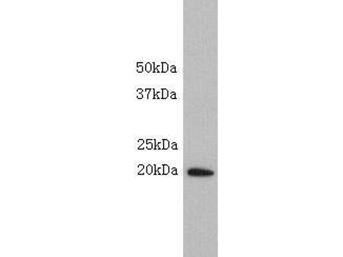 Western blot analysis on Mouse liver using anti-SCA-1 polyclonal antibody