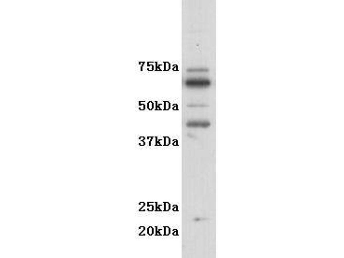 Western blot analysis on F9 cell lysates using anti- GM-CSF-R-alpha polyclonal antibody.