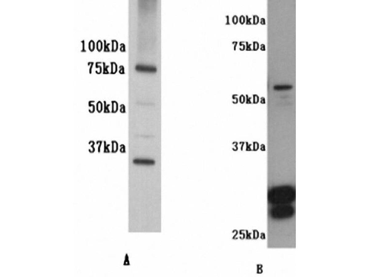Western blot analysis on K562(A) and human skin tissue (B)using anti- IL-7R-alpha polyclonal antibody.
