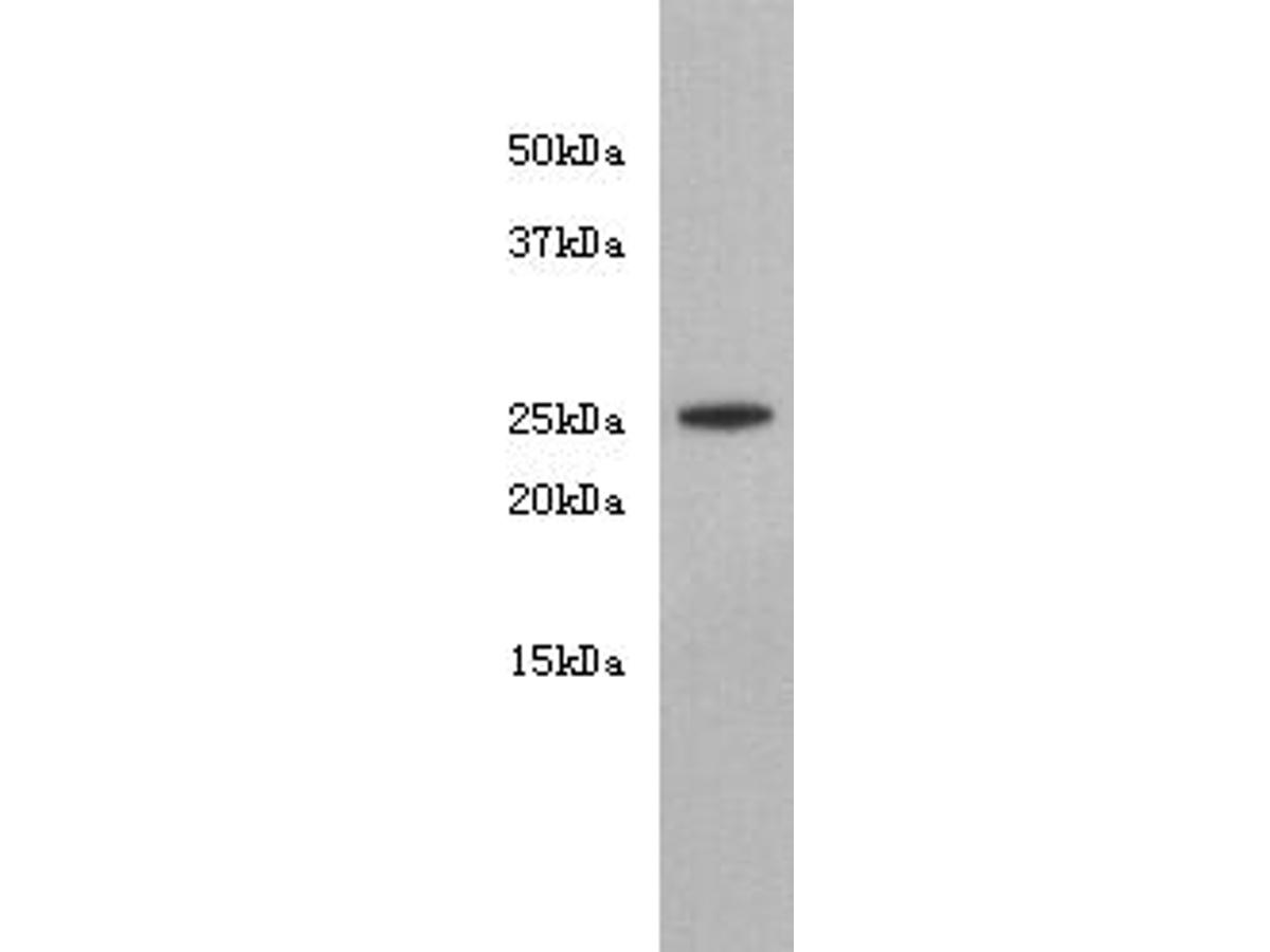 Western blot analysis of Noggin on MG-63 cell lysate using anti-Noggin antibody at 1/1,000 dilution.