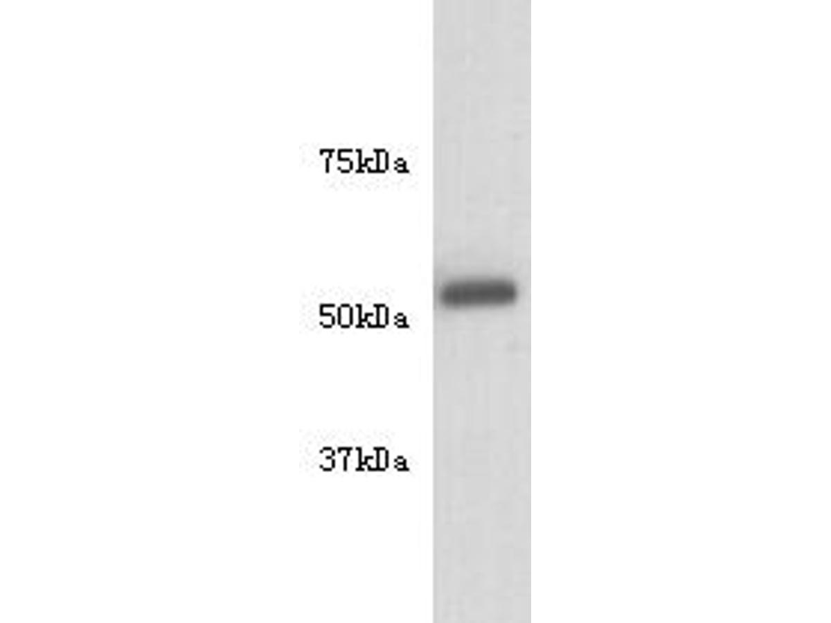 Western blot analysis of Tubulin beta-3 chain on Hela cell lysate using anti-Tubulin beta-3 chain antibody at 1/10,000 dilution.