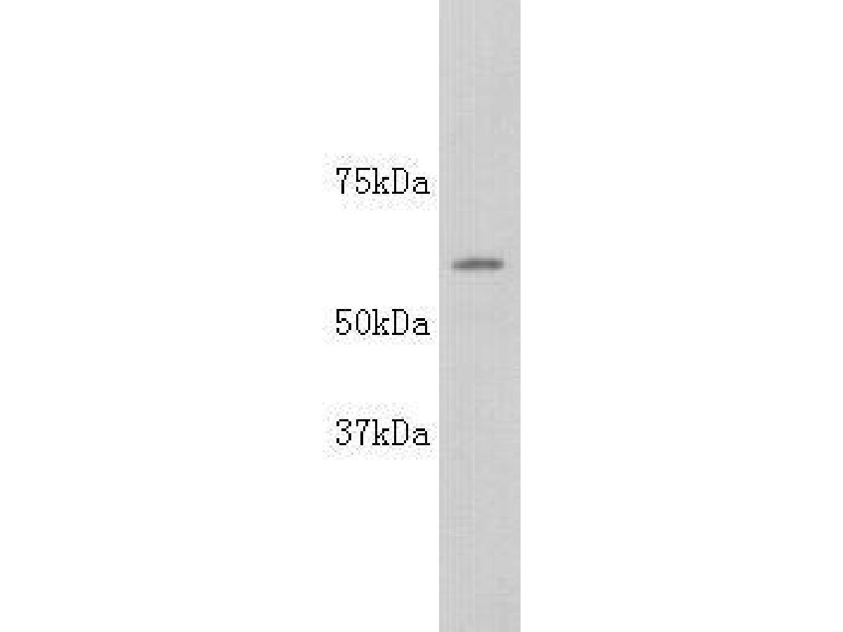 Western blot analysis on Hela using anti-ALP polyclonal antibody