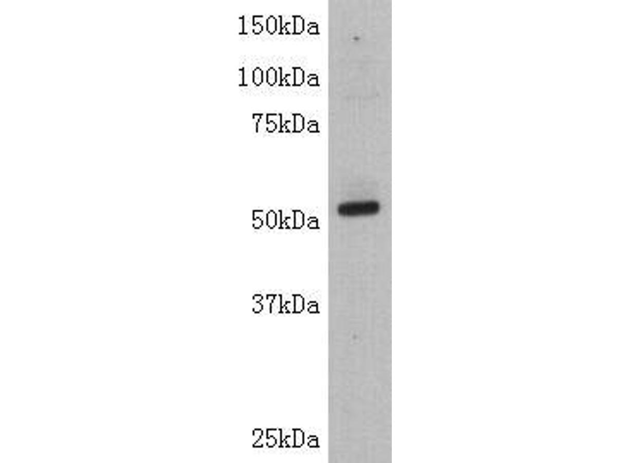 Western blot analysis on Jurkat using anti-TdT polyclonal antibody.