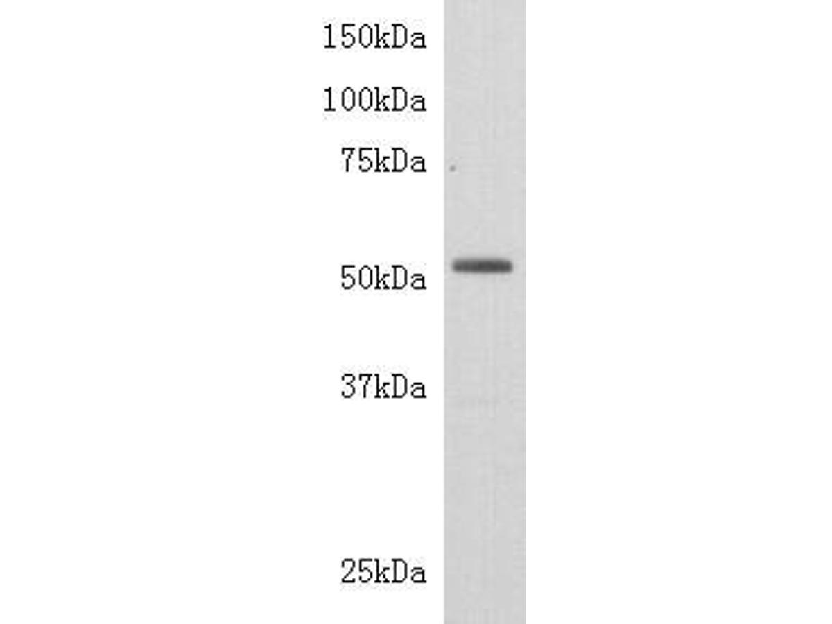 Western blot analysis on Jurkat using anti-TdT polyclonal antibody.