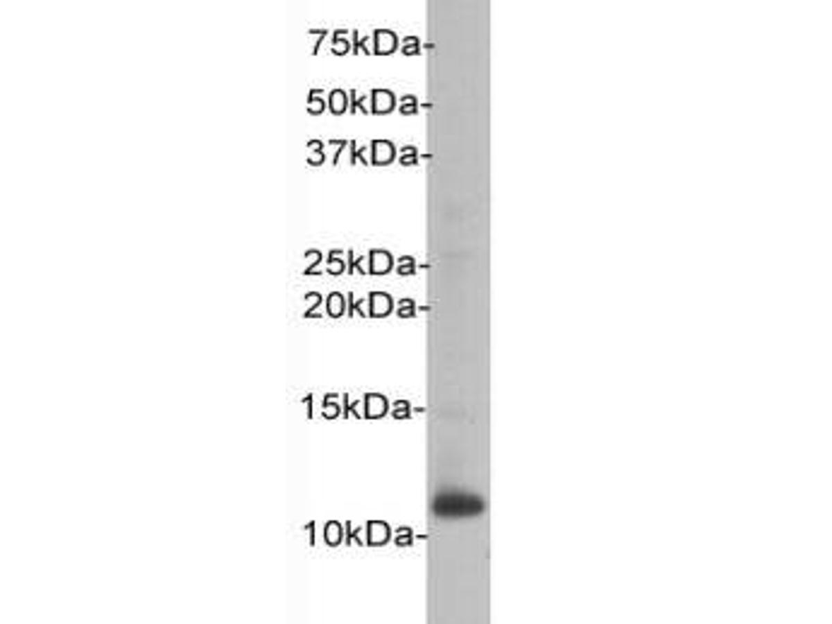 Western blot analysis on HL-60 using anti-Beta-2 Microglobulin polyclonal antibody.