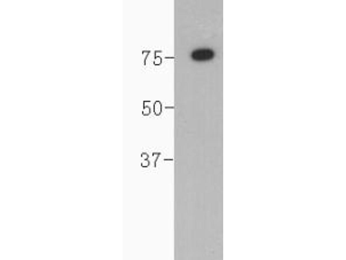 Western blot analysis on human serum using anti-complement C4 polyclonal antibody.