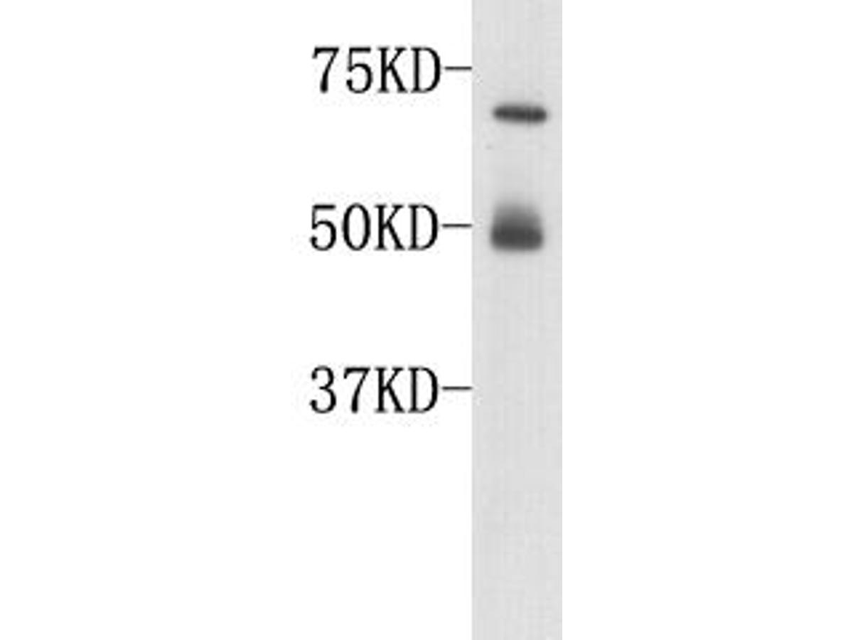 Western blot analysis on human serum using anti-complement C3 polyclonal antibody.  Note: 50kD band is caused by nonspecific reaction (goat anti-rabbit to human heavy chain).