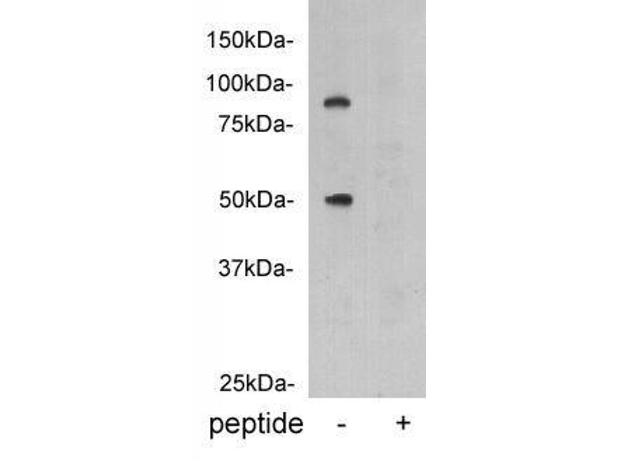 Western blot analysis on human plasma using anti-vitamin K-dependent protein C polyclonal antibody.