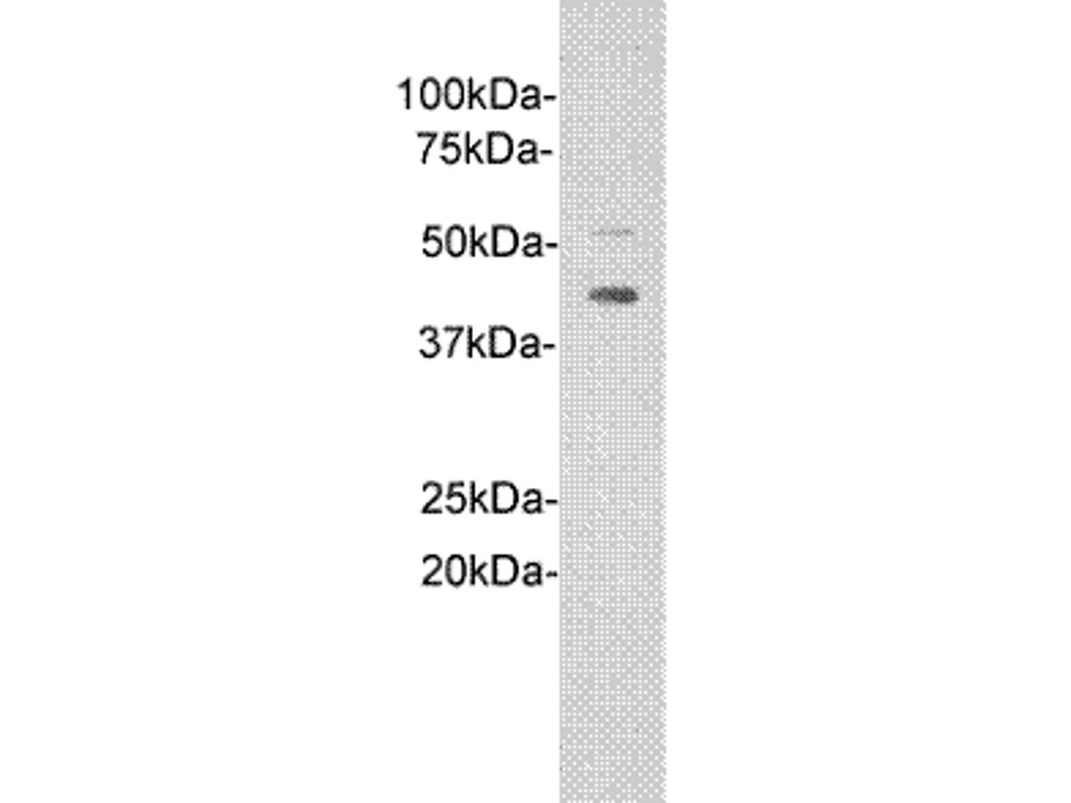 Western blot analysis of IL1RL1 on D3 cell lysates. Proteins were transferred to a PVDF membrane and blocked with 5% BSA in PBS for 1 hour at room temperature. The primary antibody (0902-2, 1/500) was used in 5% BSA at room temperature for 2 hours. Goat Anti-Rabbit IgG - HRP Secondary Antibody (HA1001) at 1:5,000 dilution was used for 1 hour at room temperature.
