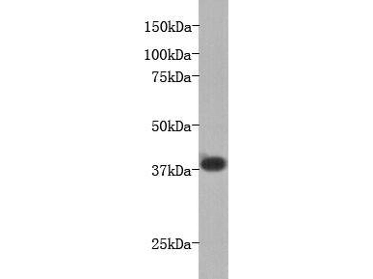 Western blot analysis on mouse liver using anti-LPA-receptor I polyclonal antibody.
