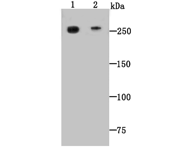 Western blot analysis of Dopey-2 on mouse heart (1) and human heart (2) tissue lysate using anti-Dopey-2 antibody at 1/500 dilution.