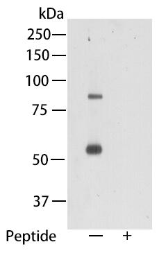 Western blot analysis of TMEM2 on mouse heart tissue lysate using anti-TMEM2 antibody at 1/1,000 dilution.