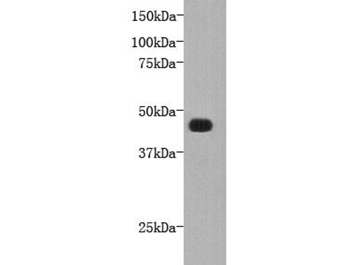 Western blot analysis on recombinant FAT4 using anti-FAT4 polyclonal antibody.