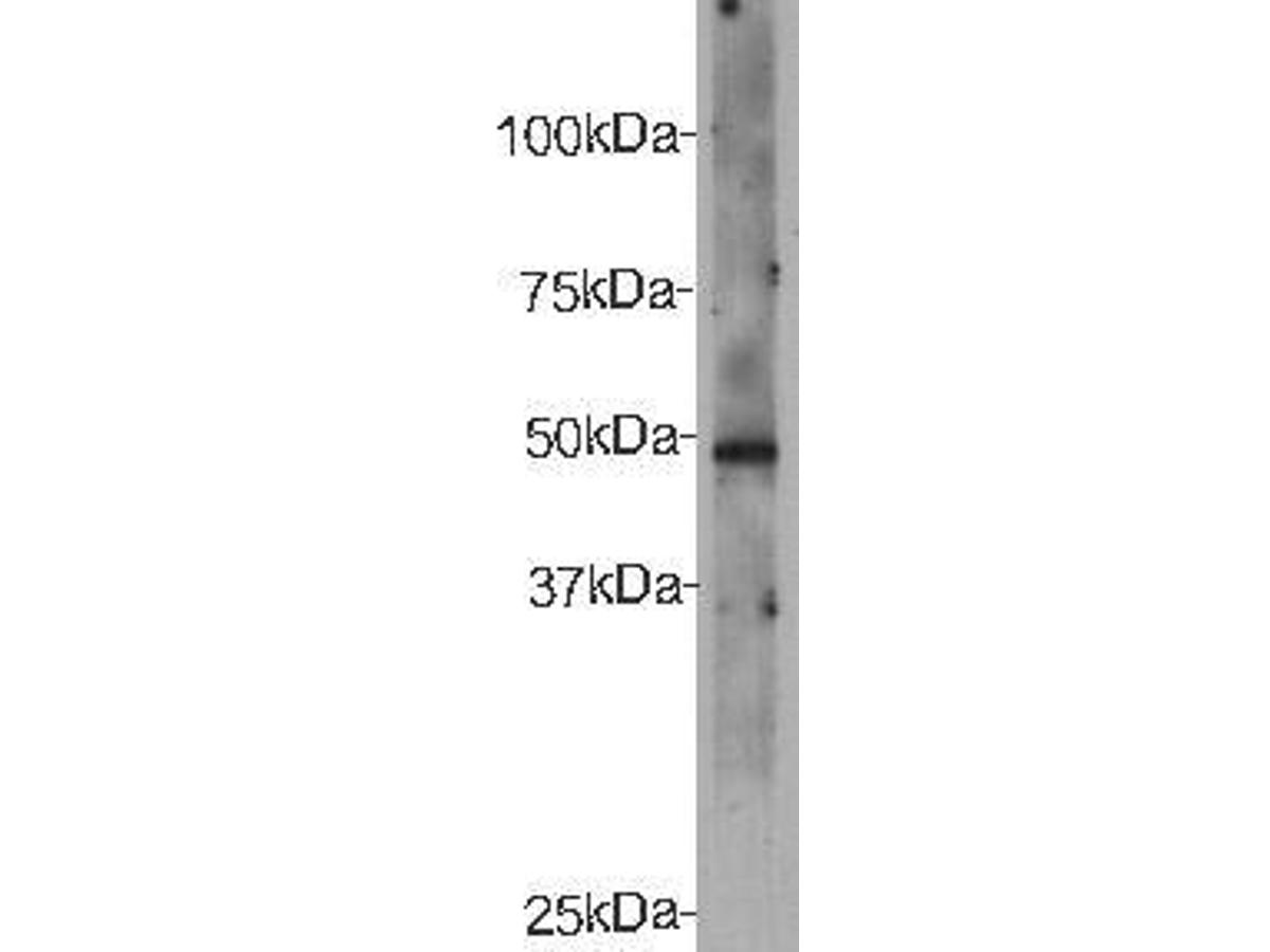 Western blot analysis on recombinant protein of CELSR2 using anti- CELSR2 polyclonal antibody.