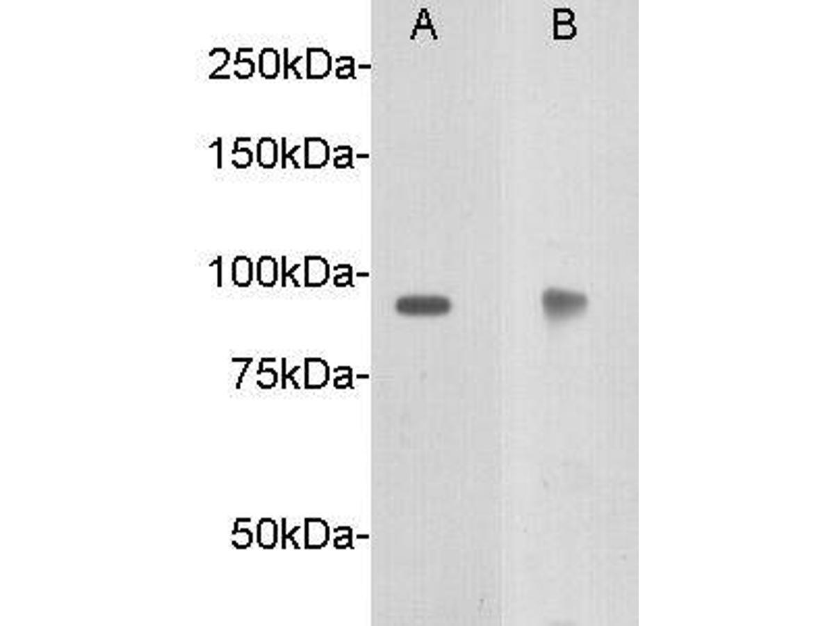 Western blot analysis on Hela using anti- Netrin receptor DCC polyclonal antibody