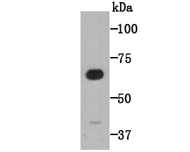 Western blot analysis of CD80 on human brain tissue lysates using anti-CD80 antibody at 1/1,000 dilution.