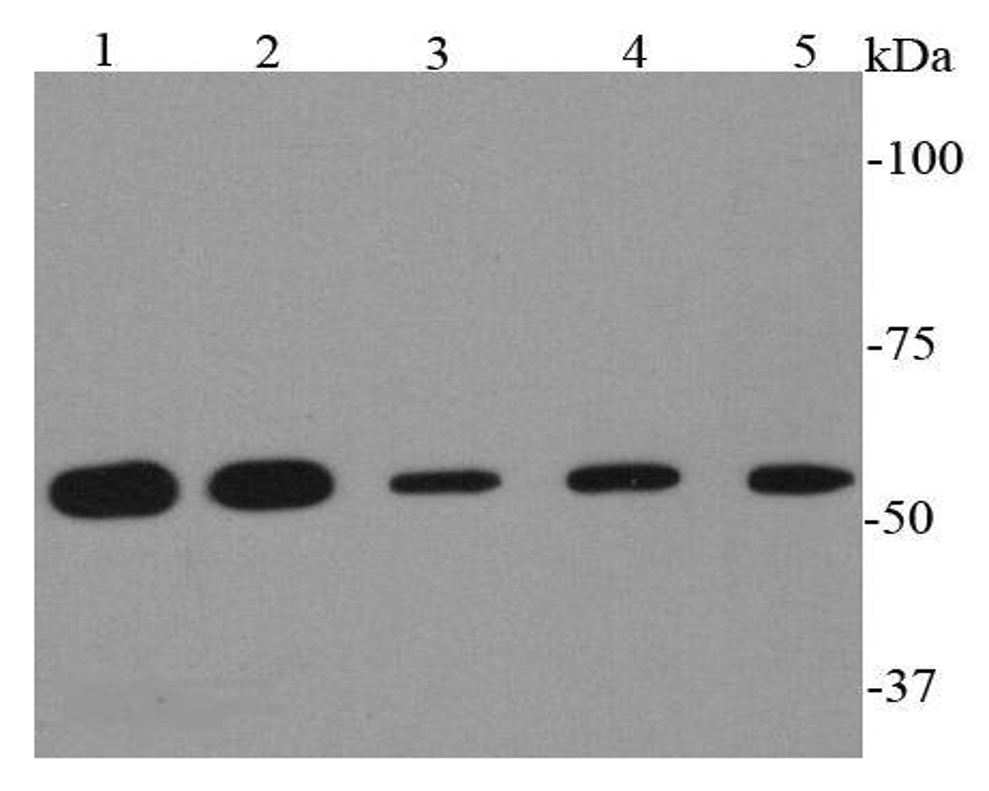 Western blot analysis of HSP60 on different cell lysates using anti-HSP60 antibody at 1/2000 dilution.<br /> Positive control:   <br /> Lane 1: Hela               <br /> Lane 2: HepG2 <br /> Lane 3: Jurkat             <br /> Lane 4: PC12 <br /> Lane 5: F9