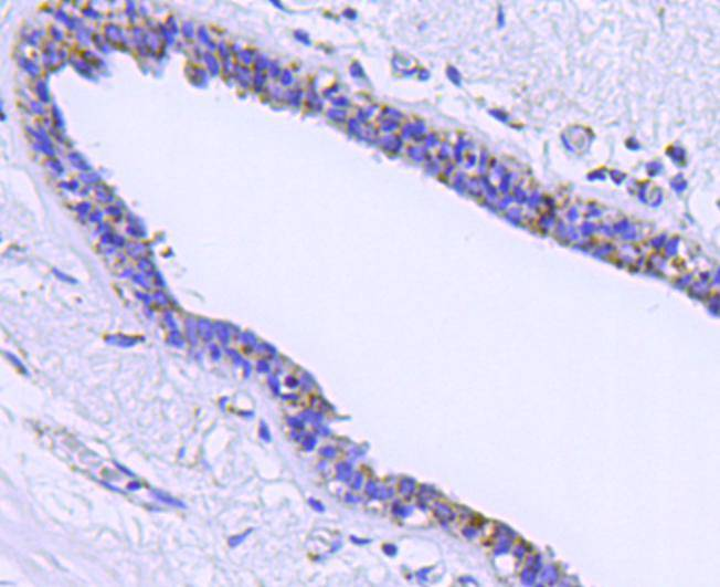 Immunohistochemical analysis of paraffin-embedded human breast cancer tissue using anti-HSP60 antibody. Counter stained with hematoxylin.