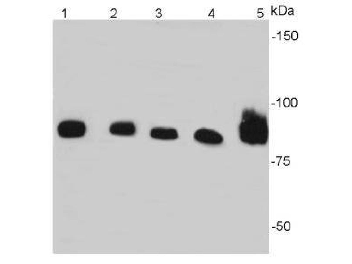 Western blot analysis of beta-catenin on different cell lysates using anti- beta-catenin antibody at 1/2000 dilution.