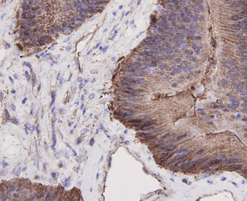 Immunohistochemical analysis of paraffin-embedded human colon cancer tissue using anti-Beta-Catenin antibody. Counter stained with hematoxylin.