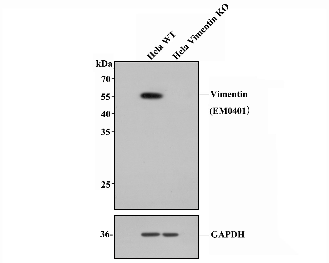 Western blot analysis of Vimentin on different lysates. Proteins were transferred to a PVDF membrane and blocked with 5% BSA in PBS for 1 hour at room temperature. The primary antibody (EM0401, 1/500) was used in 5% BSA at room temperature for 2 hours. Goat Anti-Rabbit IgG - HRP Secondary Antibody (HA1001) at 1:200,000 dilution was used for 1 hour at room temperature.<br /> Positive control: <br /> Lane 1: A549 cell lysate<br /> Lane 2: Hela cell lysate<br /> Lane 2: NIH/3T3 cell lysate<br /> Lane 4: Mouse embryonic stem cell lysate