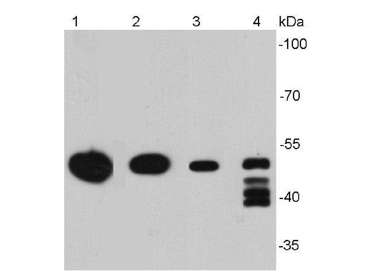 Western blot analysis of Vimentin on normal (Hela Control) and Vimentin knockolut Hela lysates. Proteins were transferred to a PVDF membrane and blocked with 5% BSA in PBS for 1 hour at room temperature. The primary antibody (EM0401, 1/500) was used in 5% BSA at room temperature for 2 hours. Goat Anti-Mouse IgG - HRP Secondary Antibody (HA1006) at 1:5,000 dilution was used for 1 hour at room temperature.