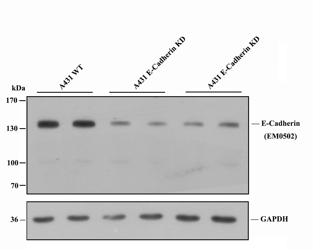 Western blot analysis of E-cadherin on  different cell lysates using anti- E-cadherin  antibody at 1/1000 dilution.<br /> Positive control: <br />   Lane 1: A431 <br />   Lane 2: SW480