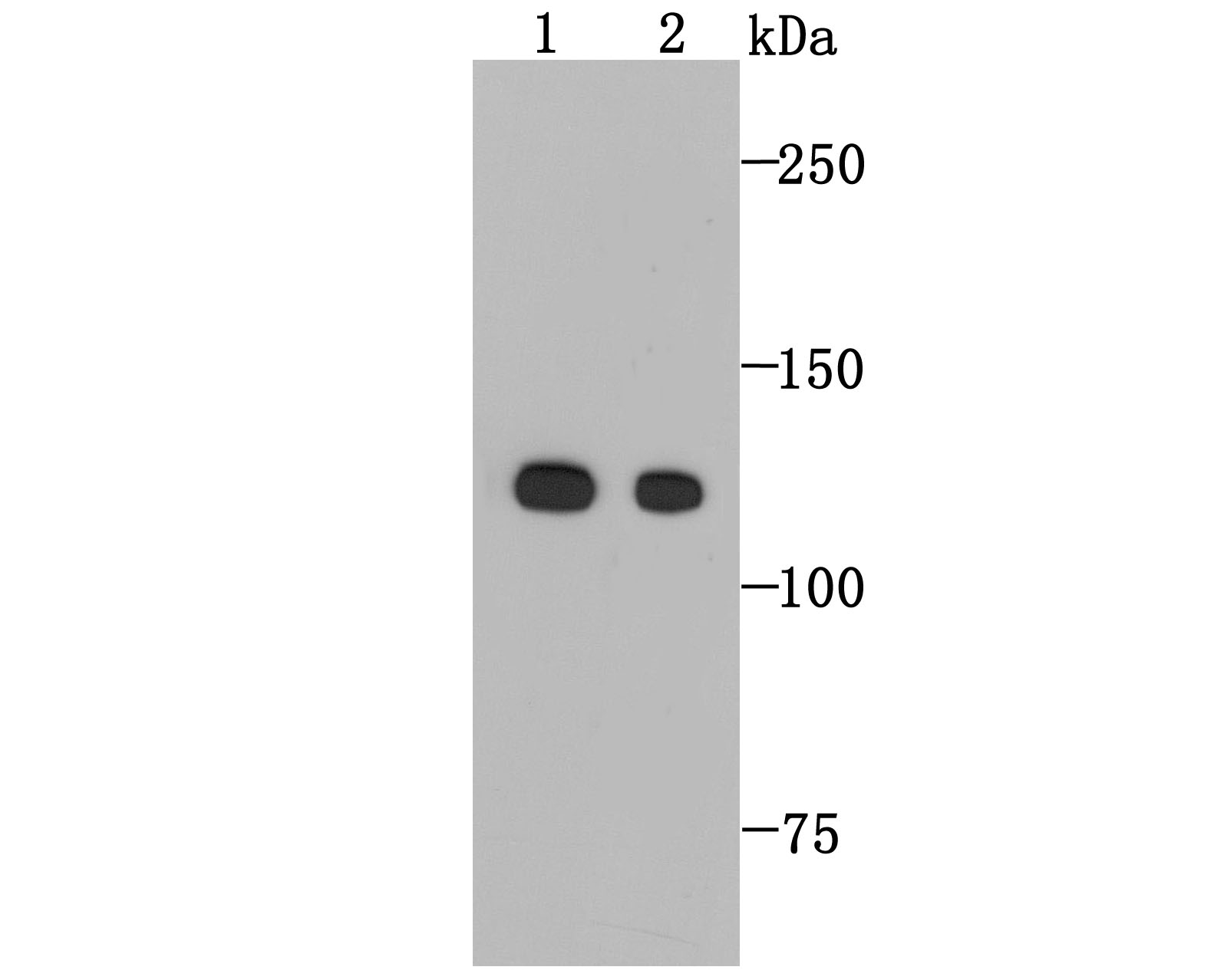 ICC staining E-Cadherin in A431 cells (red).  Cells were fixed in paraformaldehyde, permeabilised  with 0.25% Triton X100/PBS.
