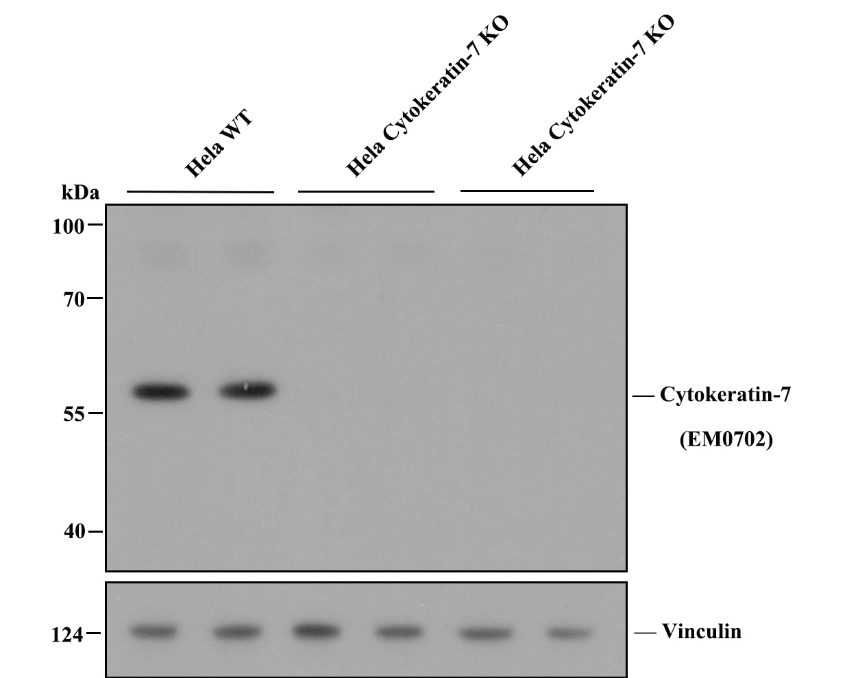 Western blot analysis of Cytokeratin-7 on different lysates. Proteins were transferred to a PVDF membrane and blocked with 5% BSA in PBS for 1 hour at room temperature. The primary antibody (EM0702, 1/500) was used in 5% BSA at room temperature for 2 hours. Goat Anti-Rabbit IgG - HRP Secondary Antibody (HA1001) at 1:200,000 dilution was used for 1 hour at room temperature.<br /> Positive control: <br /> Lane 1: MCF-7 cell lysate<br /> Lane 2: A549 cell lysate<br /> Lane 3: Hela cell lysate<br /> Lane 4: HepG2 cell lysate<br /> Lane 5: SK-Br-3 cell lysate<br /> Lane 6: SKOV-3 cell lysate<br /> Lane 7: SW1990 cell lysate