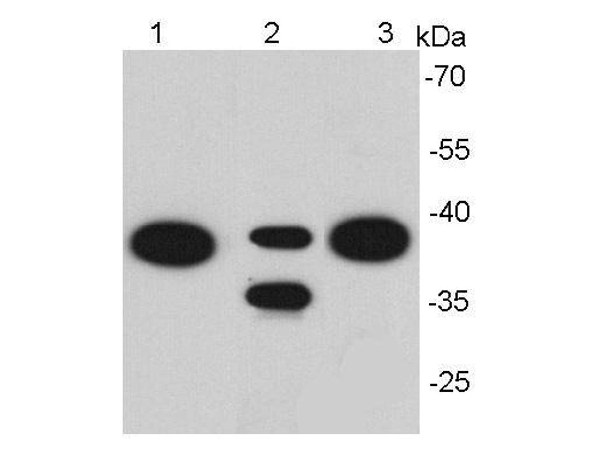 Western blot analysis of EpCAM on different cell lysates using anti- EpCAM antibody at 1/1000 dilution. <br />  Positive control:<br />  Lane 1: Hela<br />  Lane 2: NIH/3T3<br />  Lane 3: MCF-7