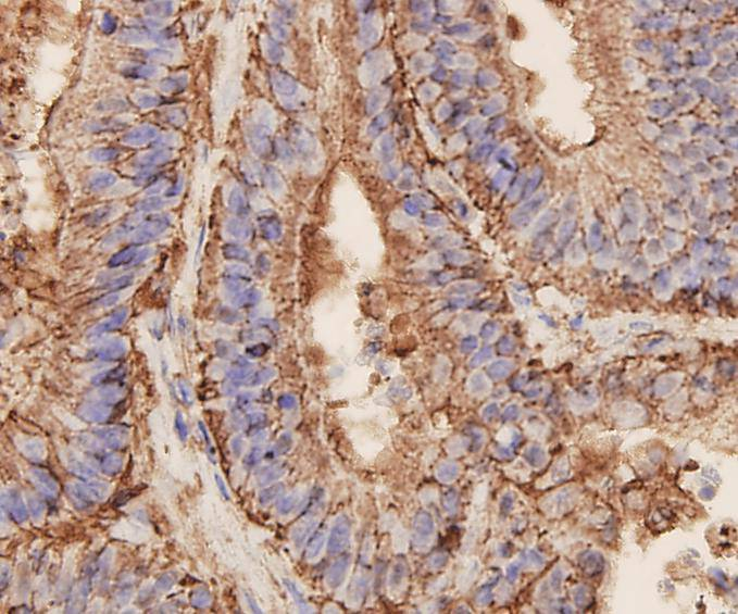 Immunohistochemical analysis of paraffin-embedded human colon carcinoma tissue using EpCAM antibody. Counter stained with hematoxylin.