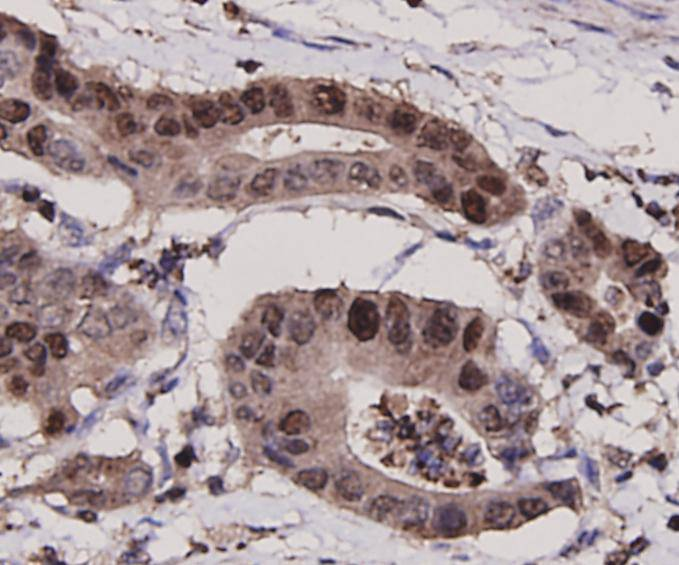 Immunohistochemical analysis of paraffin-embedded human stomach carcinoma tissue using anti-PCNA antibody. Counter stained with hematoxylin.