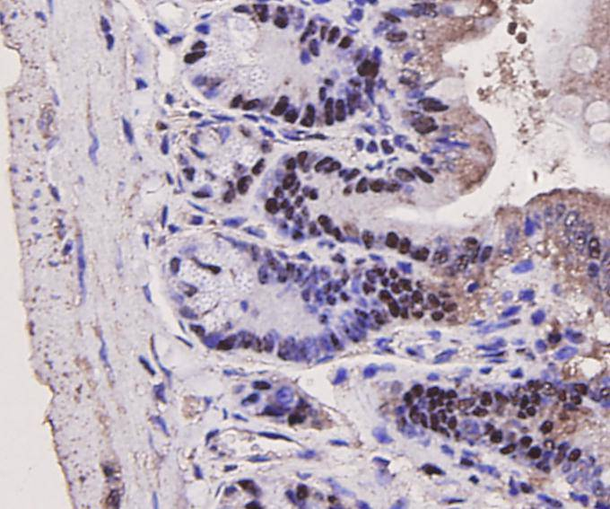 Immunohistochemical analysis of paraffin-embedded mouse large intestine tissue using anti-PCNA antibody. Counter stained with hematoxylin.