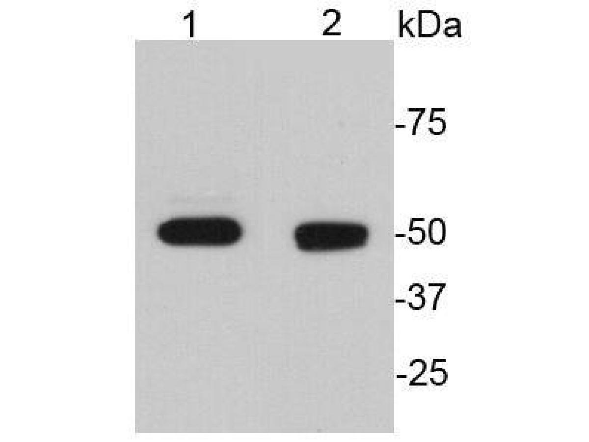 Western blot analysis of GFAP on different lysates. Proteins were transferred to a PVDF membrane and blocked with 5% BSA in PBS for 1 hour at room temperature. The primary antibody (EM140707, 1/500) was used in 5% BSA at room temperature for 2 hours. Goat Anti-Rabbit IgG - HRP Secondary Antibody (HA1001) at 1:40,000 dilution was used for 1 hour at room temperature.<br /> Positive control: <br /> Lane 1: Rat brain tissue lysate<br /> Lane 2: Human brain tissue lysate