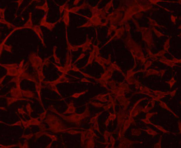 ICC staining of GFAP in A172 cells (red). Formalin fixed cells were permeabilized with 0.1% Triton X-100 in TBS for 10 minutes at room temperature and blocked with 1% Blocker BSA for 15 minutes at room temperature. Cells were probed with the primary antibody (EM140707, 1/50) for 1 hour at room temperature, washed with PBS. Alexa Fluor®594 Goat anti-Rabbit IgG was used as the secondary antibody at 1/1,000 dilution. The nuclear counter stain is DAPI (blue).