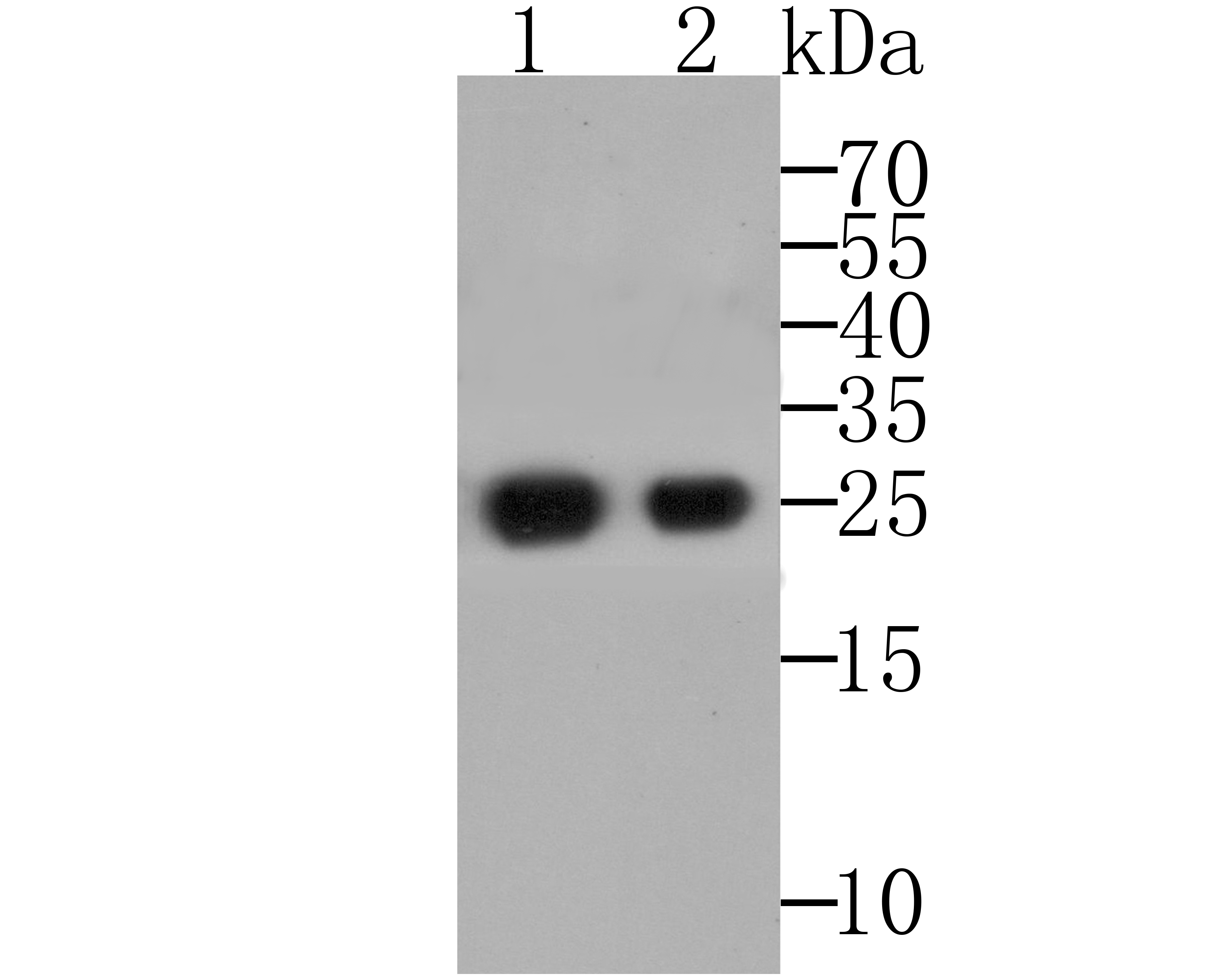 Western blot analysis of Alpha-1-acid glycoprotein on recombinant protein using anti-Alpha-1-acid glycoprotein antibody at 1/5,000 (1), 1:20,000 (2) dilution.