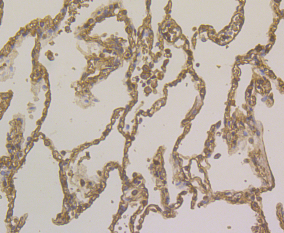Immunohistochemical analysis of paraffin-embedded human lung cancer tissue using anti-Alpha-1-acid glycoprotein antibody. Counter stained with hematoxylin.