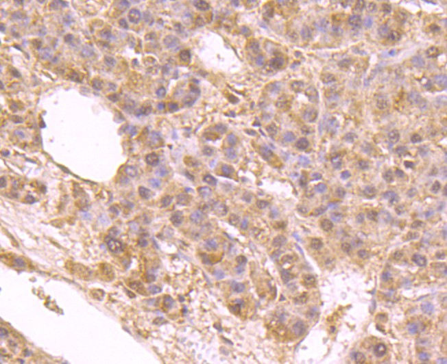 Immunohistochemical analysis of paraffin-embedded human liver cancer tissue using anti-IMP3 antibody. Counter stained with hematoxylin.