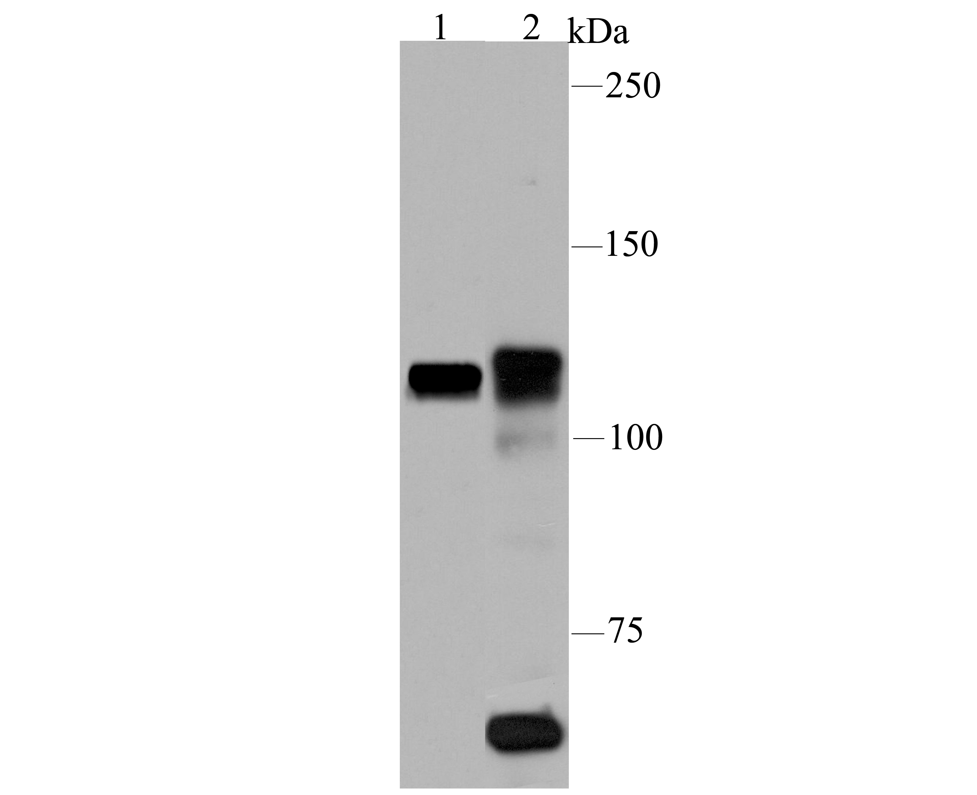 Western blot analysis of PARP1 on different lysates using anti-PARP1 antibody at 1/100 dilution.<br /> Positive control:<br /> Lane 1: Daudi<br /> Lane 2: Rat spleen tissue