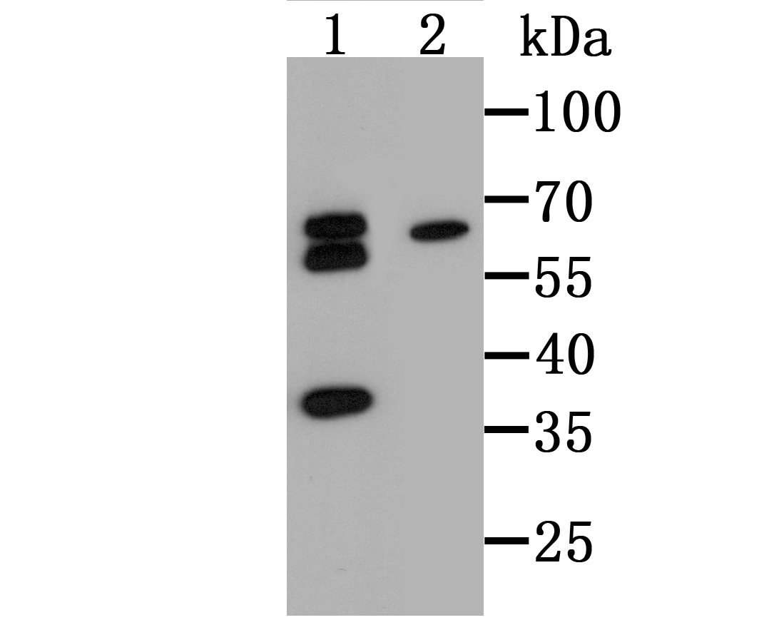 Western blot analysis of tim3 on 293T cell (1) and U937 cell lysates using anti-Tim3 antibody at 1/500 dilution.