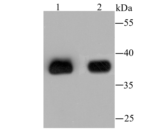 Western blot analysis of AKR1C1 on different lysates using anti-AKR1C1 antibody at 1/2,000 dilution.<br />   Positive control:<br />   Lane 1: HepG2<br />   Lane 2: Human liver tissue