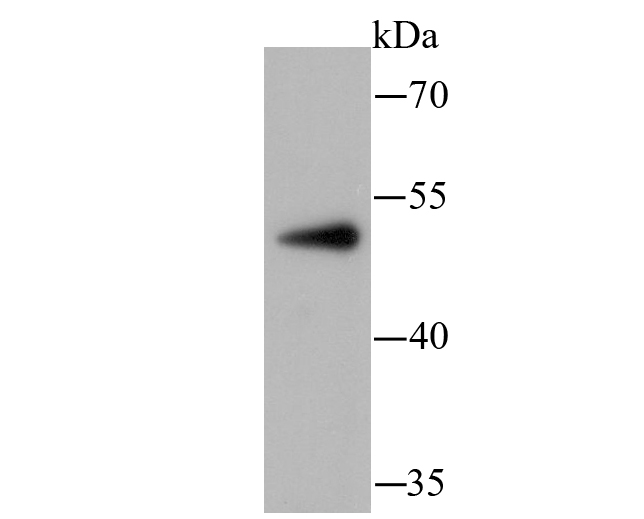 Western blot analysis of PCSK9 on PANC-1 using anti-PCSK9 antibody at 1/100 dilution.