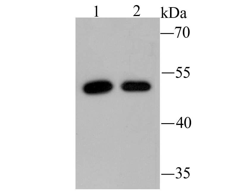 Western blot analysis of PCSK9 on H22 (1) and SW1990 (2) using anti-PCSK9 antibody at 1/500 dilution.