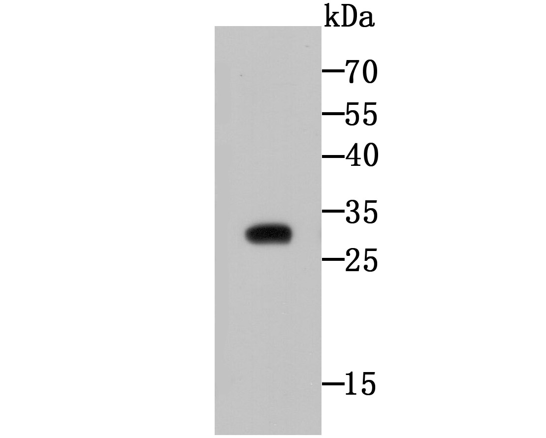 Western blot analysis of CTHRC1 on CTHRC1 recombinant protein using anti-CTHRC1 antibody at 1/500 dilution.