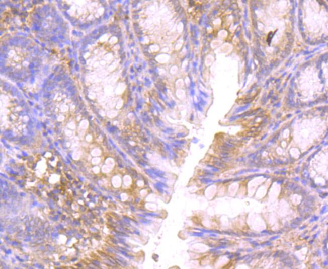 Immunohistochemical analysis of paraffin-embedded rat large intestine tissue using anti-CTHRC1 antibody. Counter stained with hematoxylin.